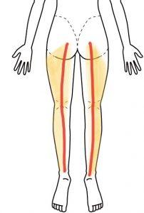 赤い線が坐骨神経、黄色い部分が症状が出る範囲です。